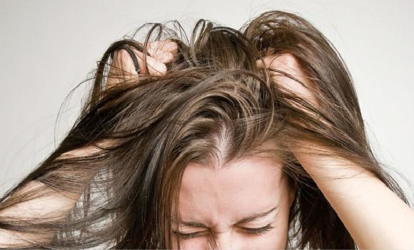 【科普+种草】年轻时掉头发要注意!你离秃顶只有一步了