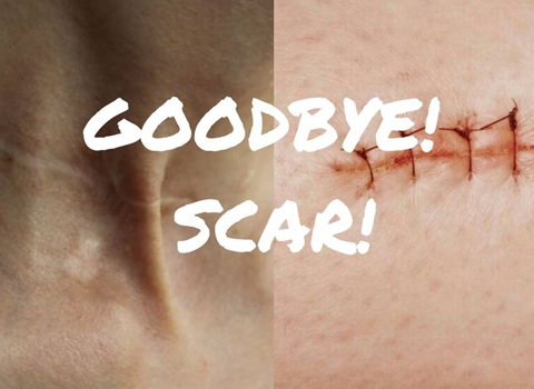 蚊子包,抓痕,碰擦疤痕,手术疤痕,say byebye!